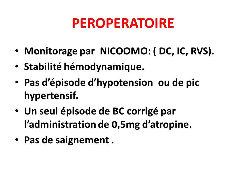 PEROPERATOIRE Monitorage par NICOOMO: ( DC, IC, RVS).