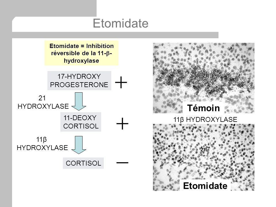 Etomidate = Inhibition réversible de la 11-b-hydroxylase