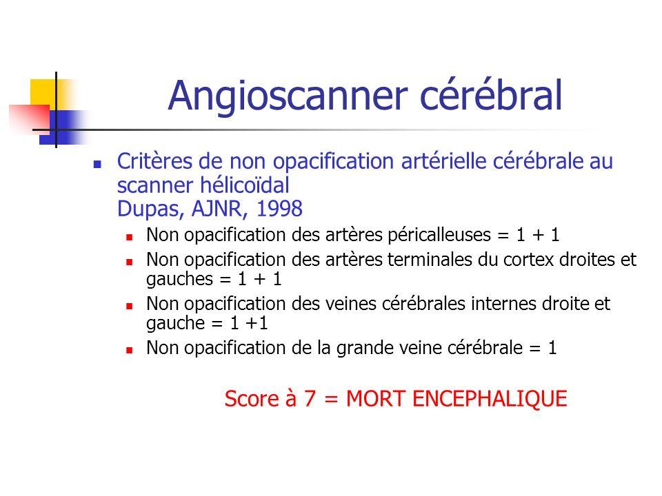 Angioscanner cérébral