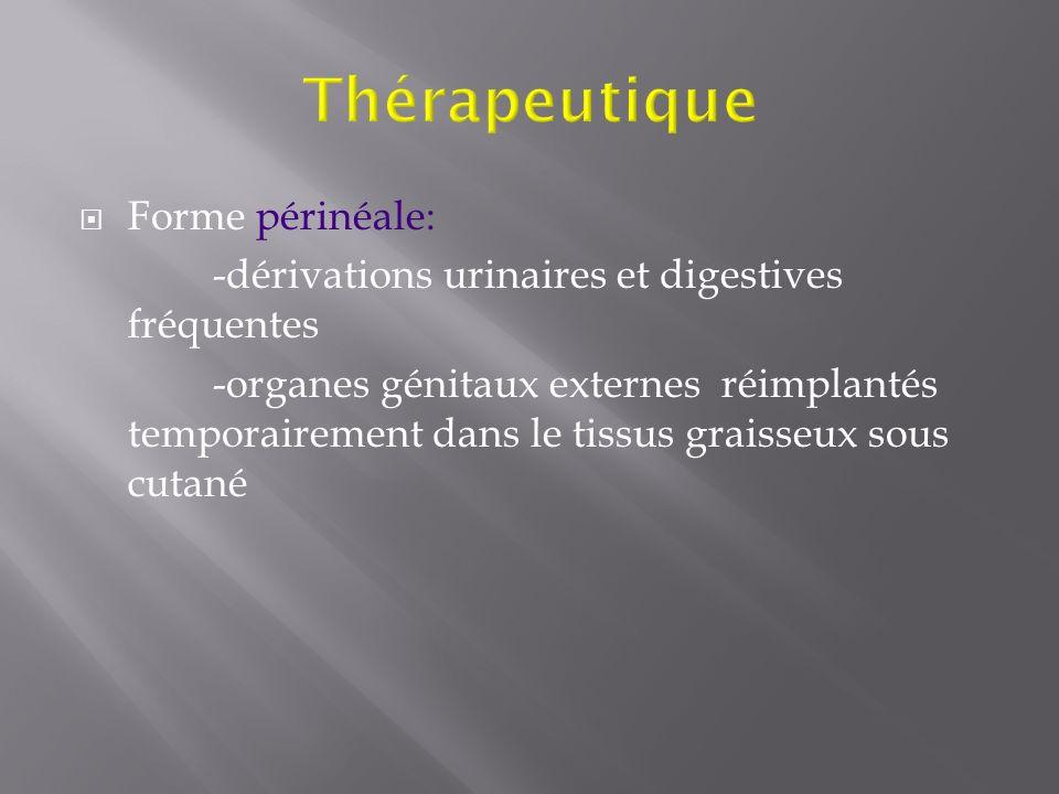 Thérapeutique Forme périnéale: