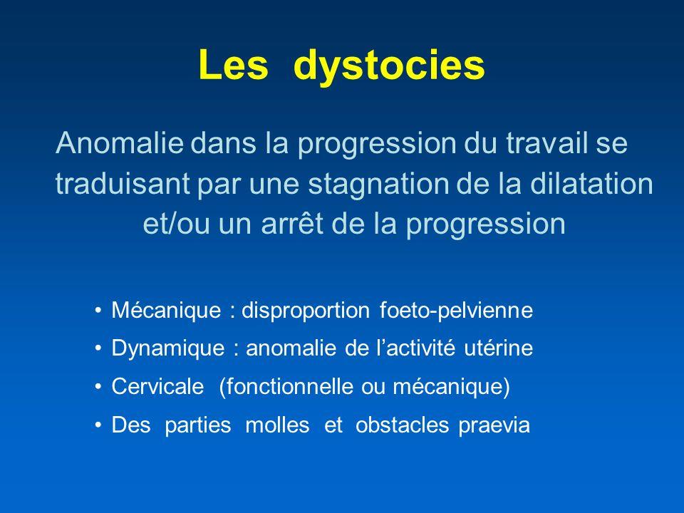 Les dystocies Anomalie dans la progression du travail se traduisant par une stagnation de la dilatation et/ou un arrêt de la progression.