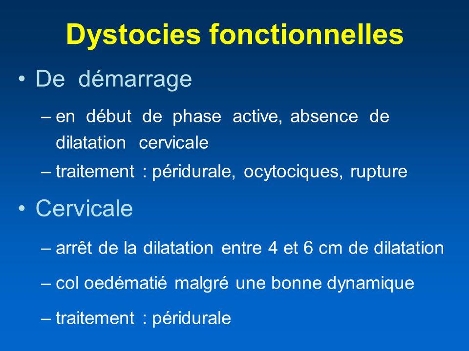 Dystocies fonctionnelles