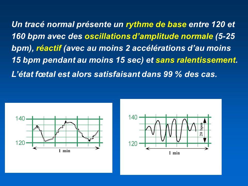 Un tracé normal présente un rythme de base entre 120 et 160 bpm avec des oscillations d'amplitude normale (5-25 bpm), réactif (avec au moins 2 accélérations d'au moins 15 bpm pendant au moins 15 sec) et sans ralentissement.