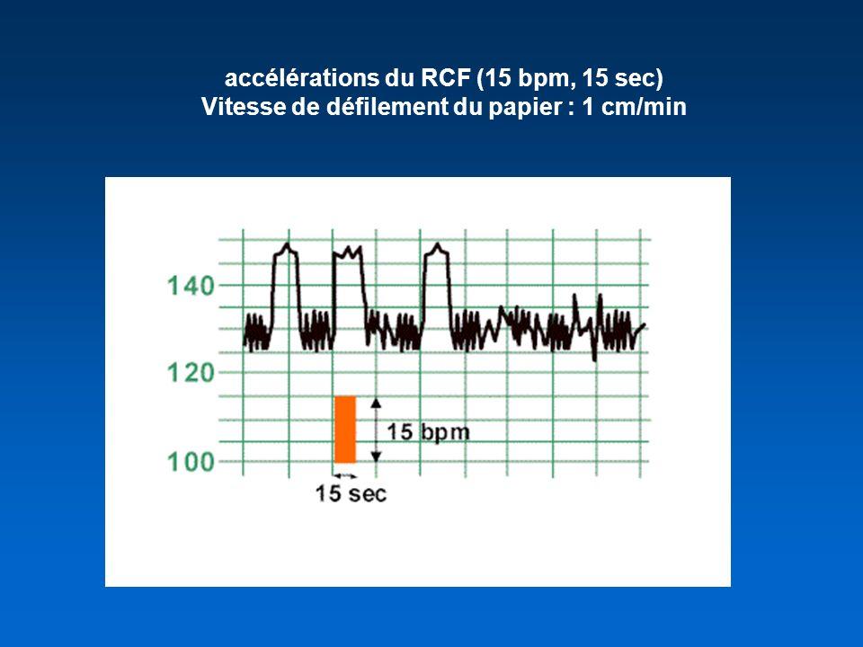 accélérations du RCF (15 bpm, 15 sec)