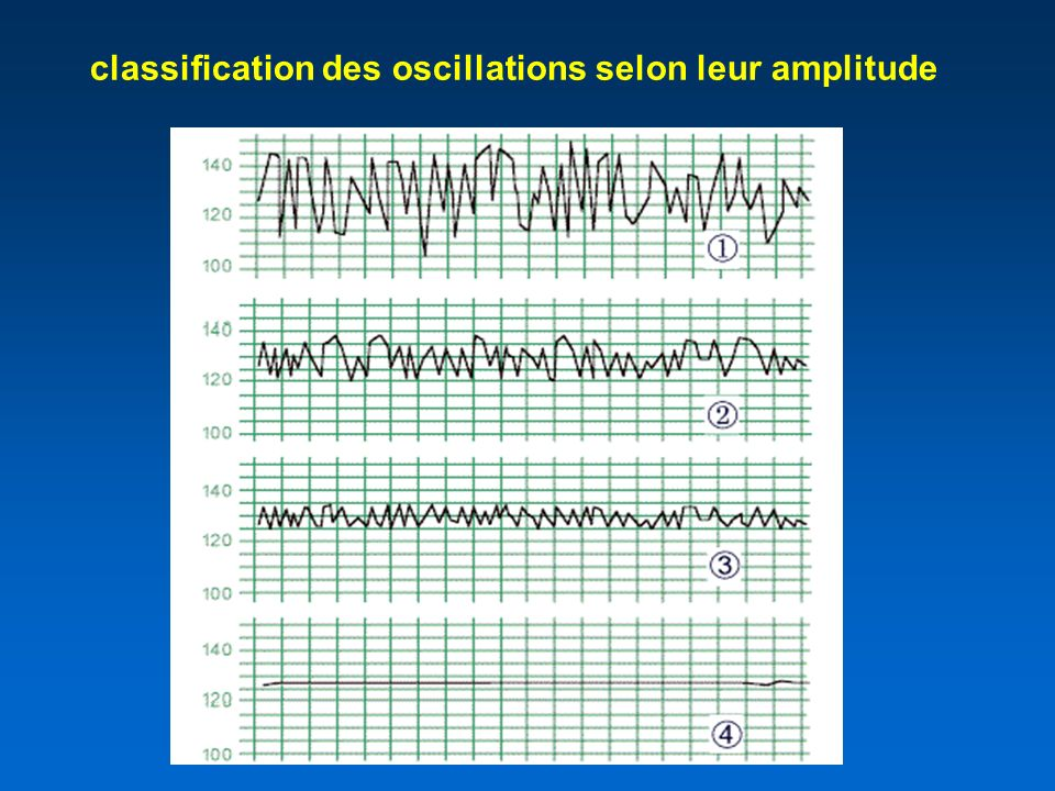 classification des oscillations selon leur amplitude