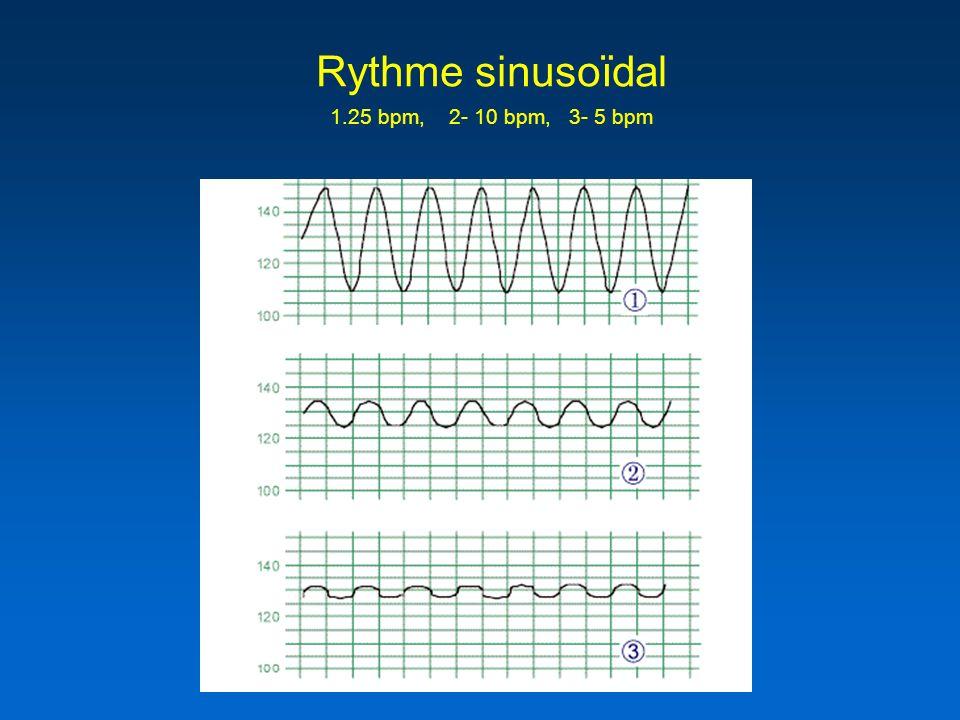 Rythme sinusoïdal 25 bpm, 2- 10 bpm, 3- 5 bpm