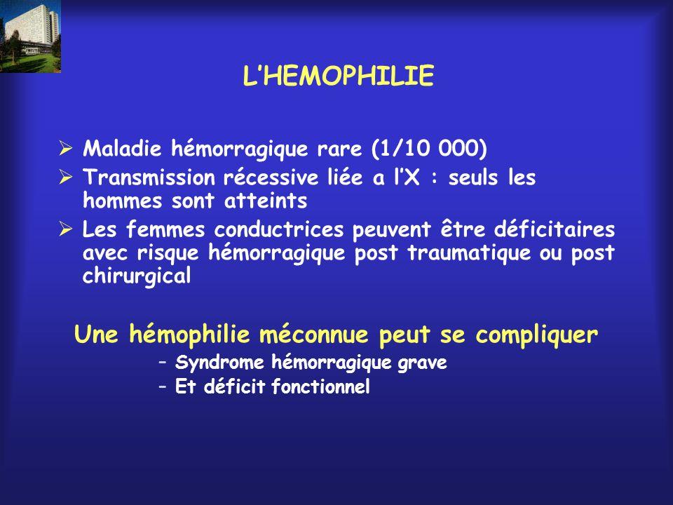 Une hémophilie méconnue peut se compliquer