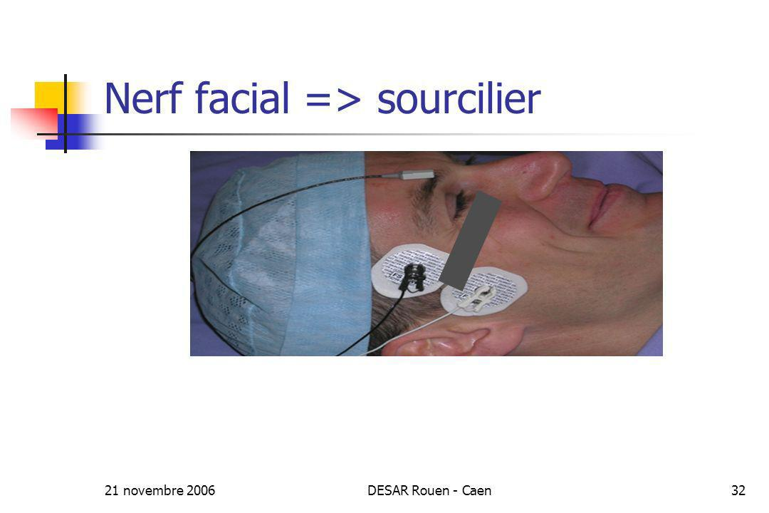 Nerf facial => sourcilier