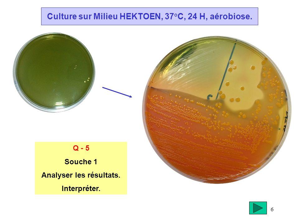 Culture sur Milieu HEKTOEN, 37°C, 24 H, aérobiose.