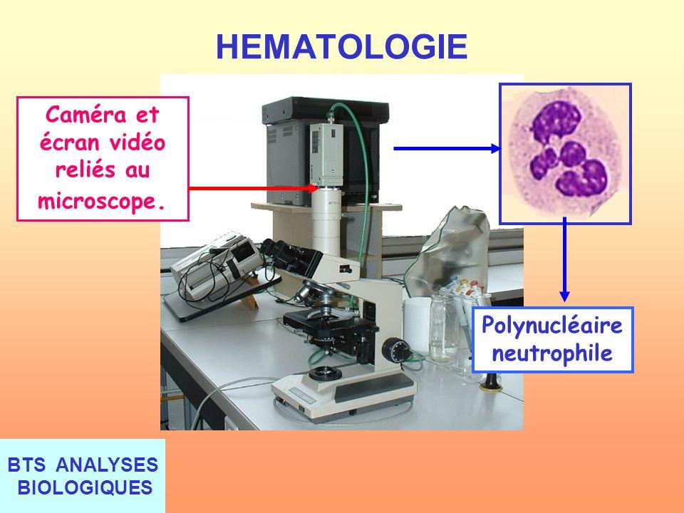 Caméra et écran vidéo reliés au microscope. Polynucléaire neutrophile