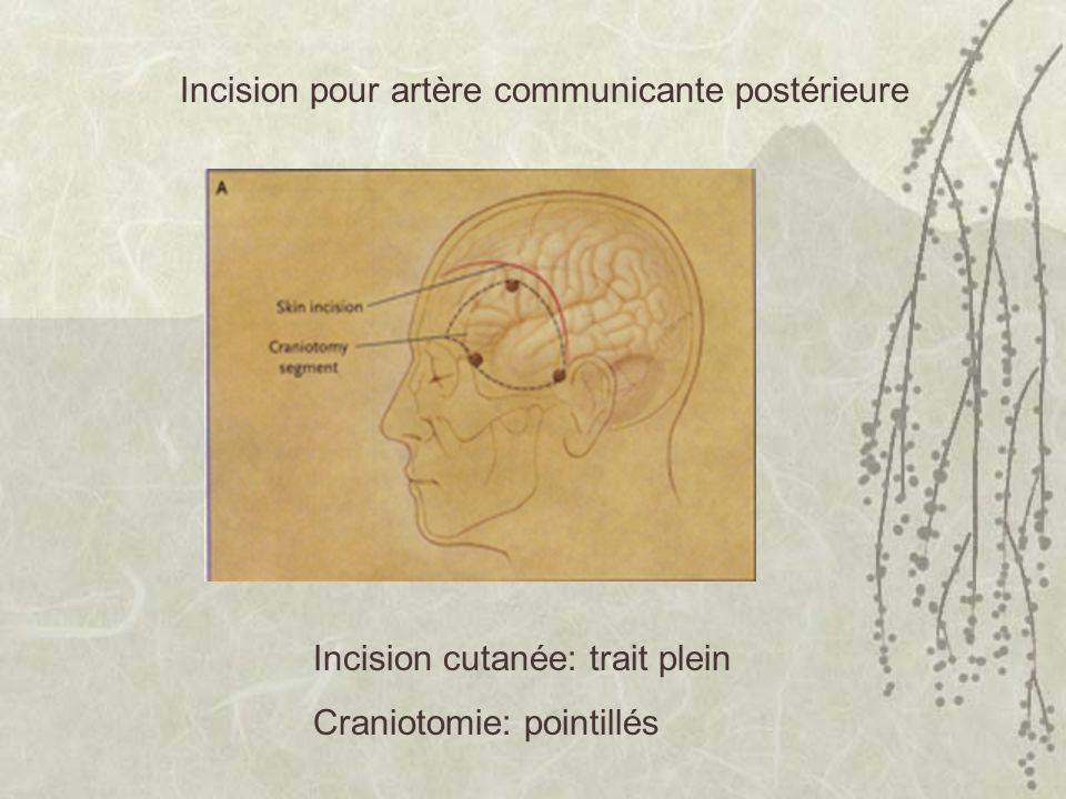 Incision pour artère communicante postérieure
