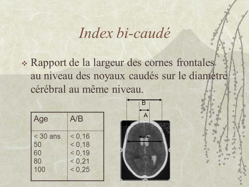 Index bi-caudé Rapport de la largeur des cornes frontales au niveau des noyaux caudés sur le diamètre cérébral au même niveau.
