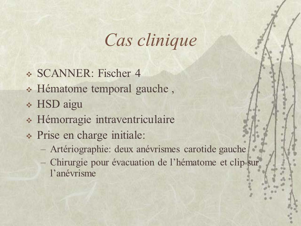 Cas clinique SCANNER: Fischer 4 Hématome temporal gauche , HSD aigu