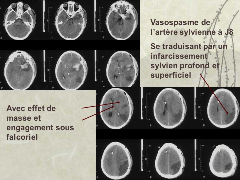 Vasospasme de l'artère sylvienne à J8