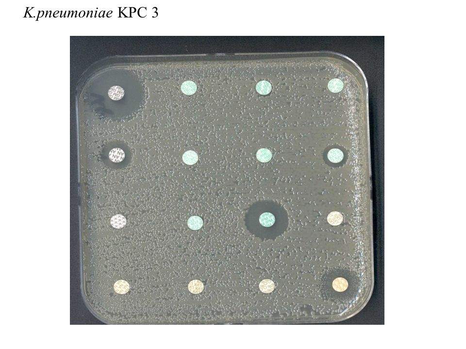 K.pneumoniae KPC 3