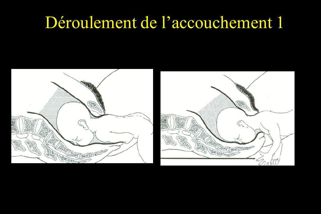 Déroulement de l'accouchement 1