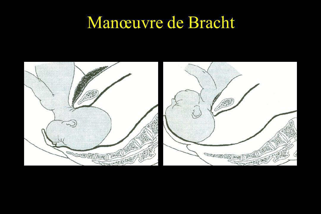 Manœuvre de Bracht
