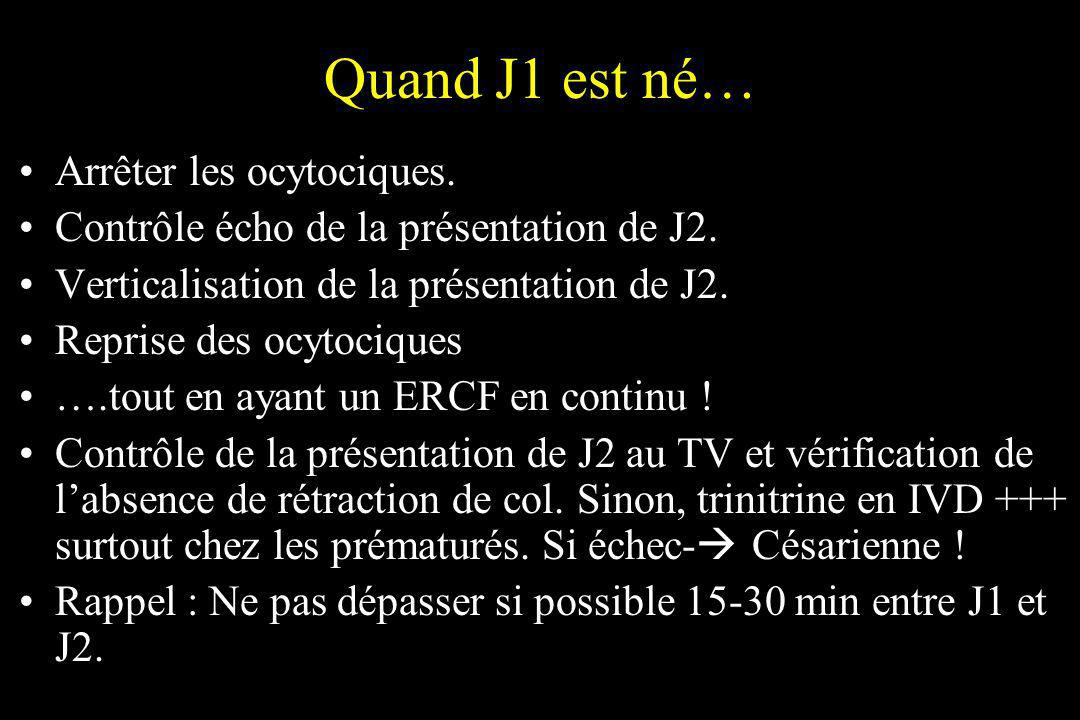 Quand J1 est né… Arrêter les ocytociques.
