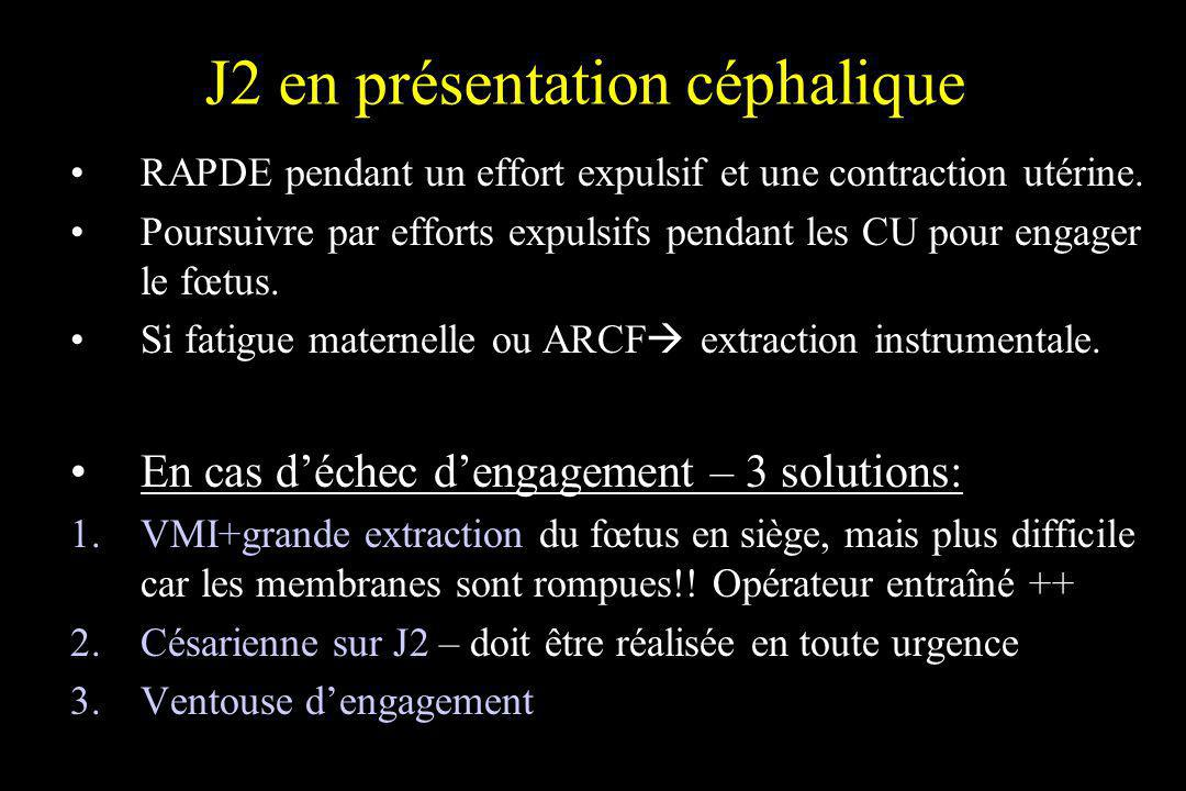 J2 en présentation céphalique