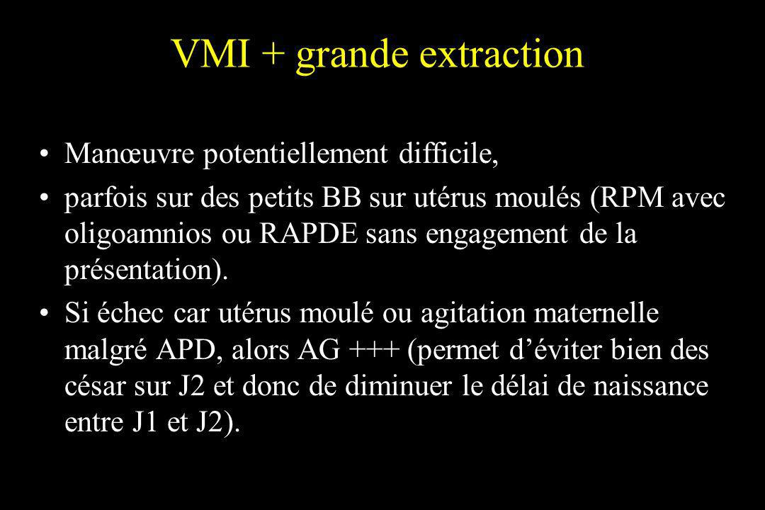 VMI + grande extraction