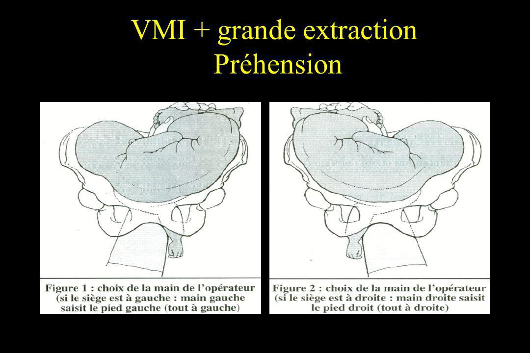 VMI + grande extraction Préhension