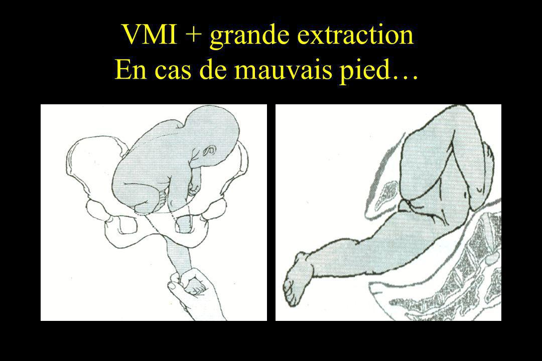 VMI + grande extraction En cas de mauvais pied…