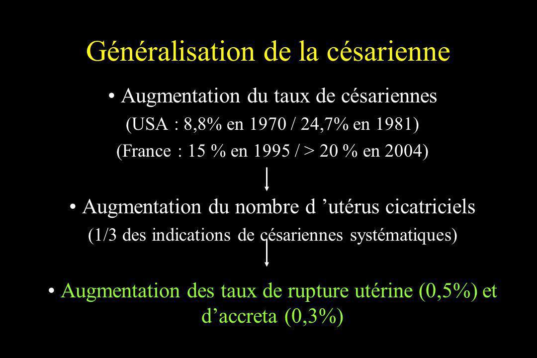 Généralisation de la césarienne