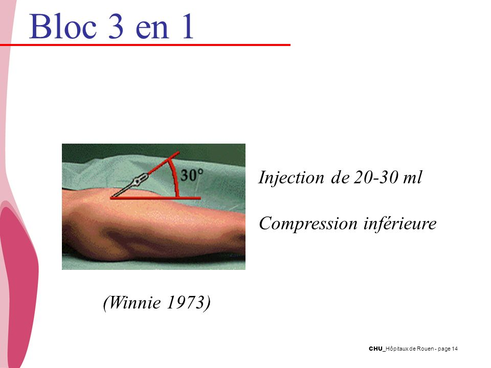 Bloc 3 en 1 Injection de ml Compression inférieure (Winnie 1973)
