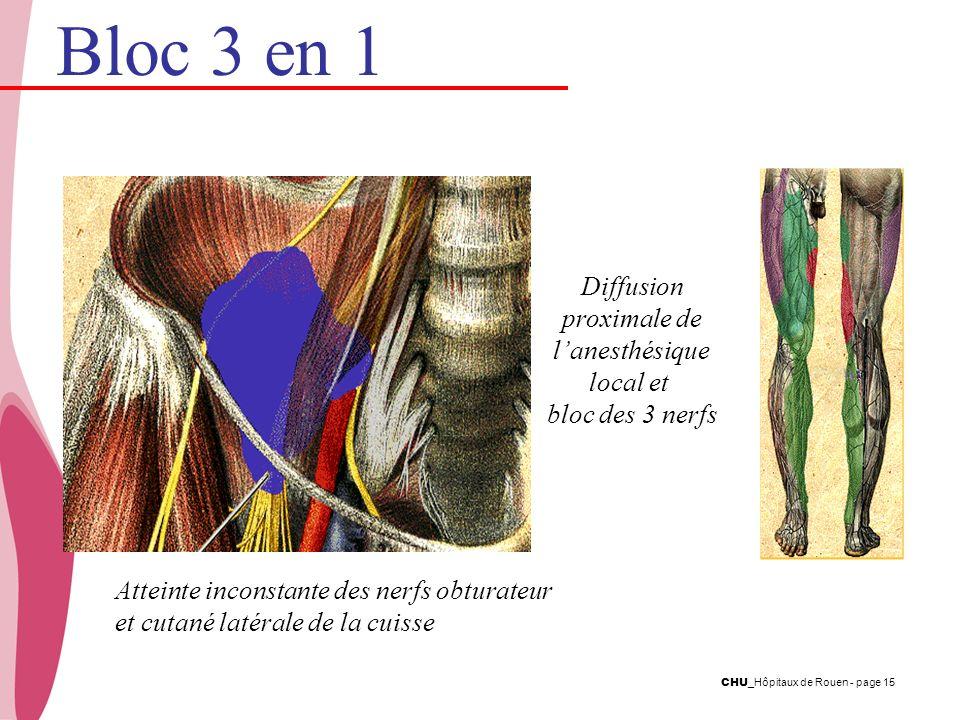 Bloc 3 en 1 Diffusion proximale de l'anesthésique local et