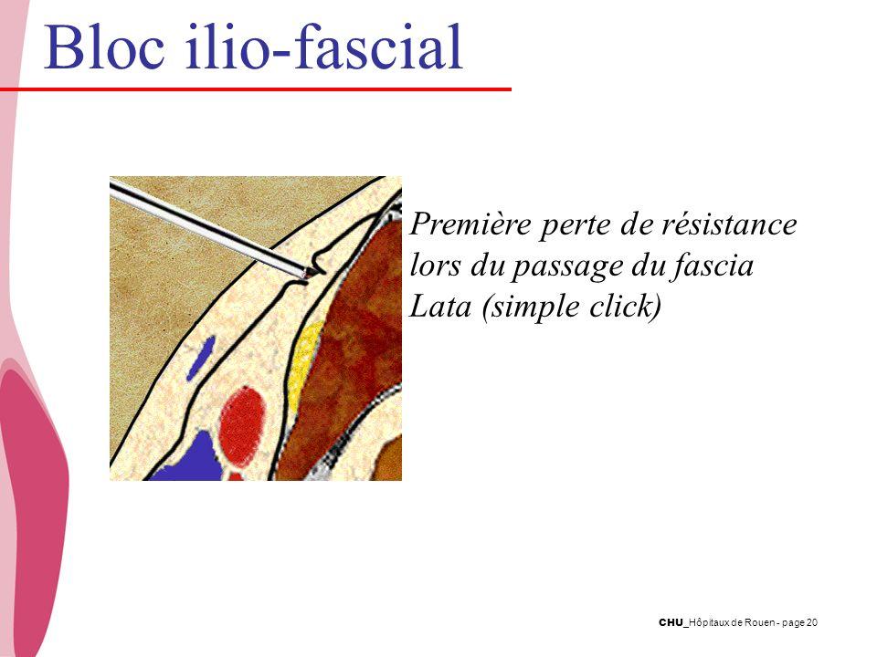 Bloc ilio-fascial Première perte de résistance