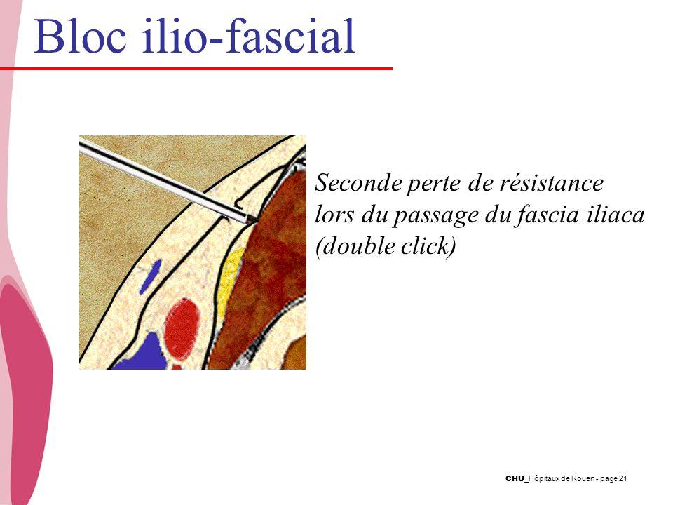 Bloc ilio-fascial Seconde perte de résistance