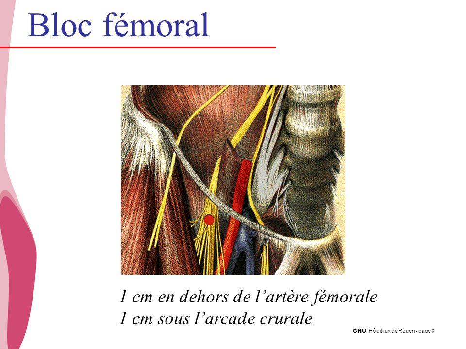 Bloc fémoral 1 cm en dehors de l'artère fémorale