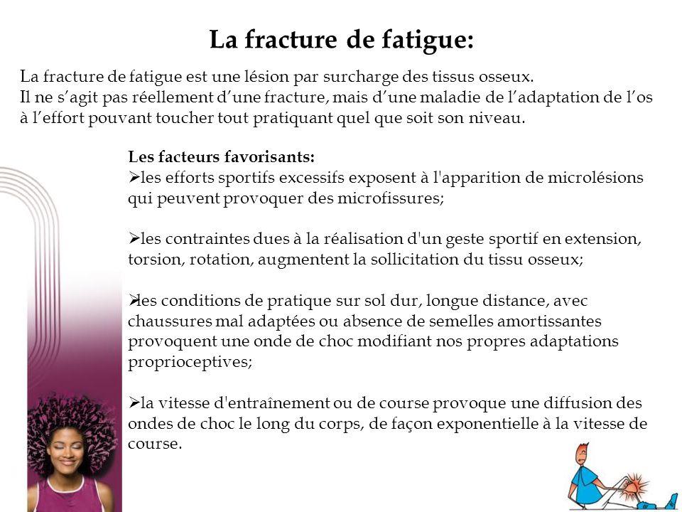 La fracture de fatigue: