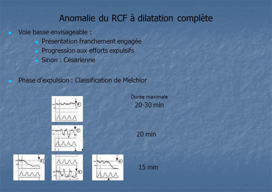 Anomalie du RCF à dilatation complète