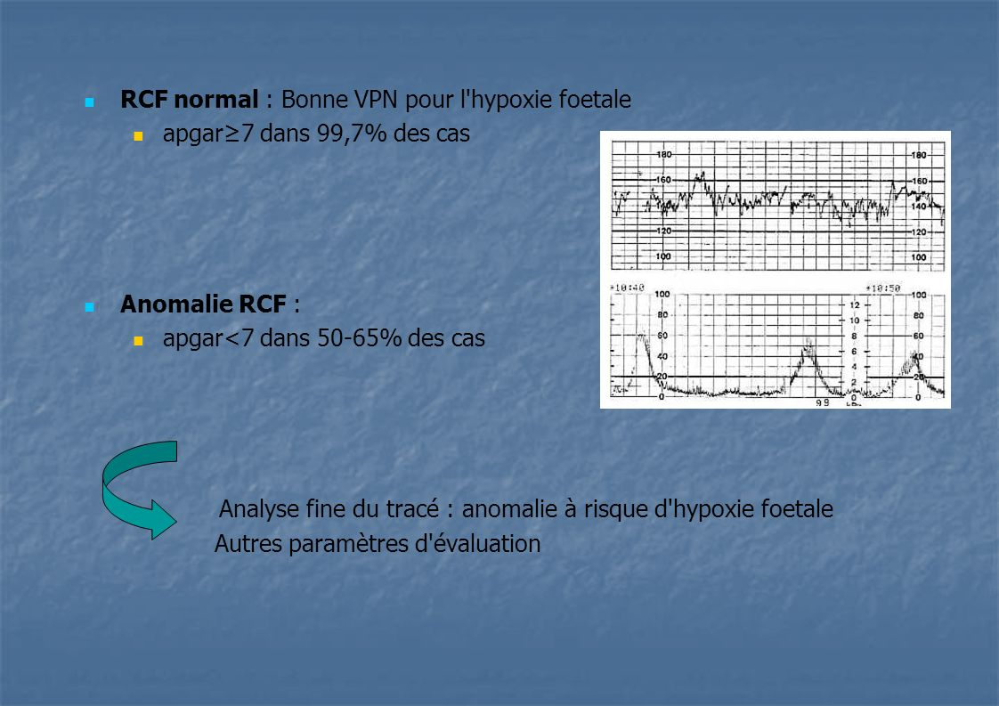 RCF normal : Bonne VPN pour l hypoxie foetale