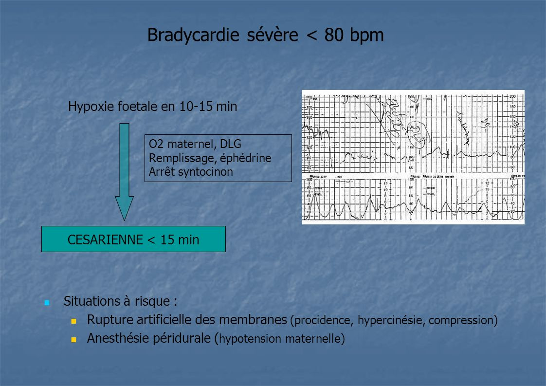 Bradycardie sévère < 80 bpm