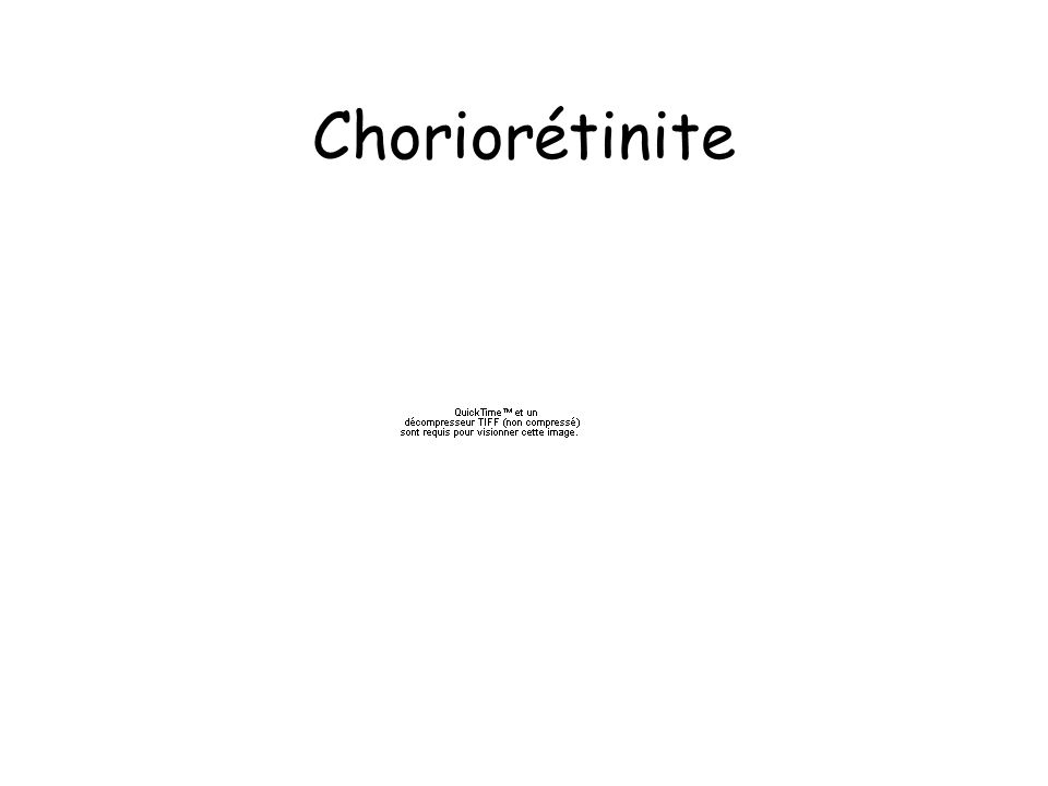 Choriorétinite
