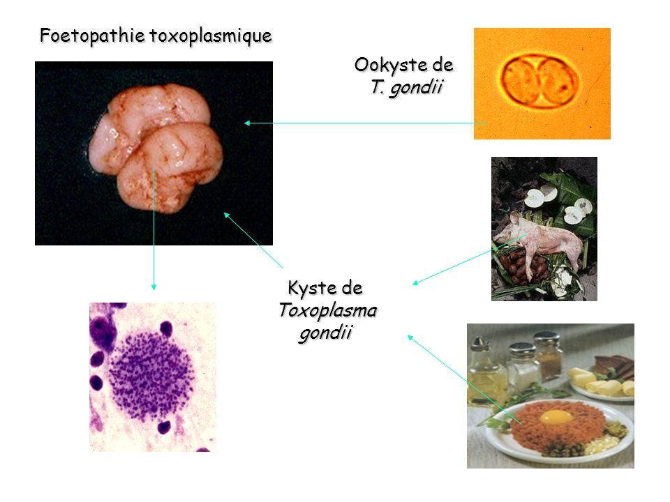 Foetopathie toxoplasmique