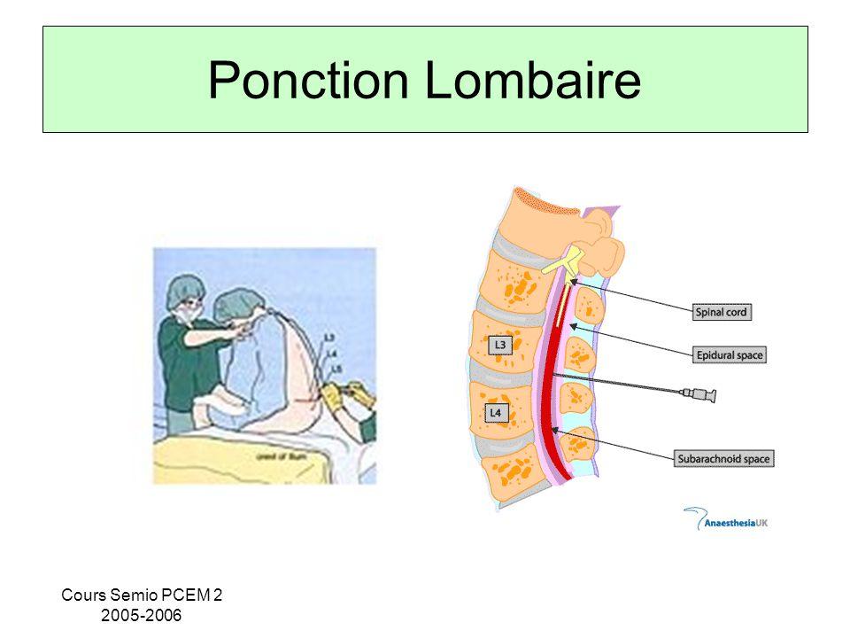 Ponction Lombaire Cours Semio PCEM 2 2005-2006