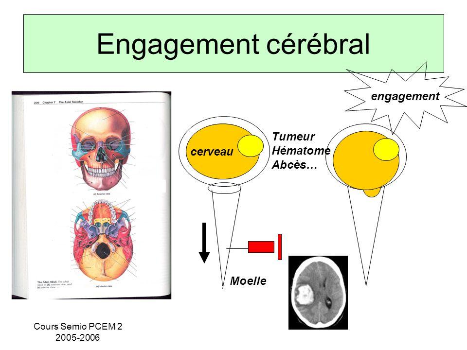 Engagement cérébral engagement Tumeur Hématome cerveau Abcès… Moelle