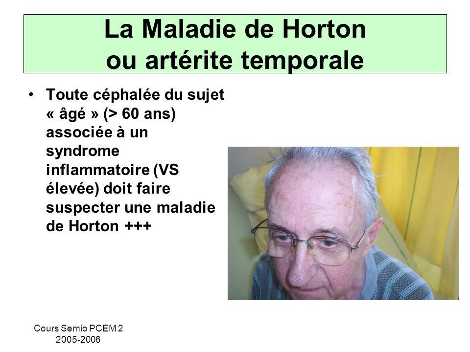 La Maladie de Horton ou artérite temporale
