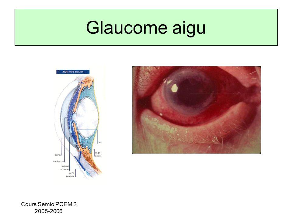 Glaucome aigu Cours Semio PCEM 2 2005-2006