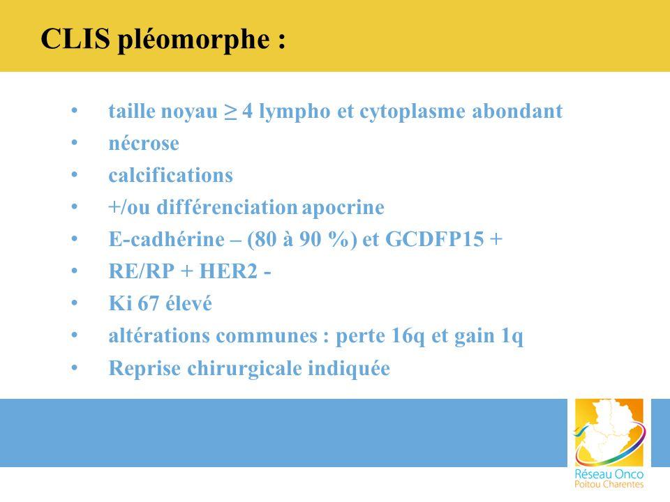 CLIS pléomorphe : taille noyau ≥ 4 lympho et cytoplasme abondant