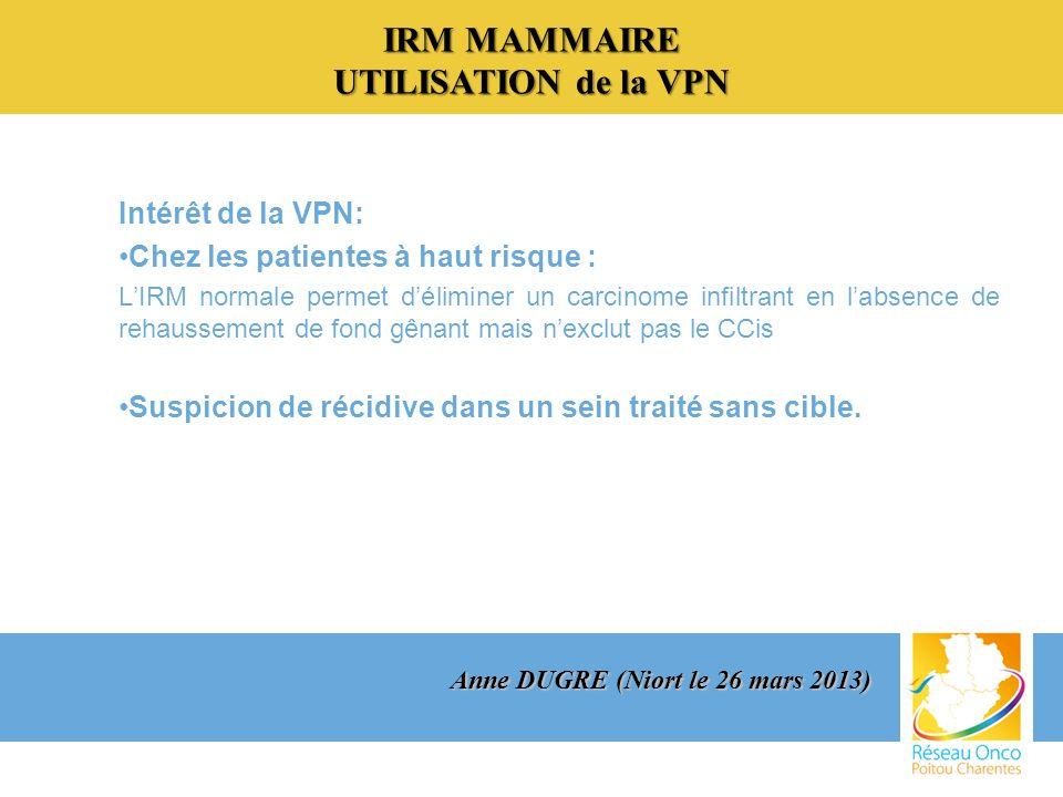 IRM MAMMAIRE UTILISATION de la VPN