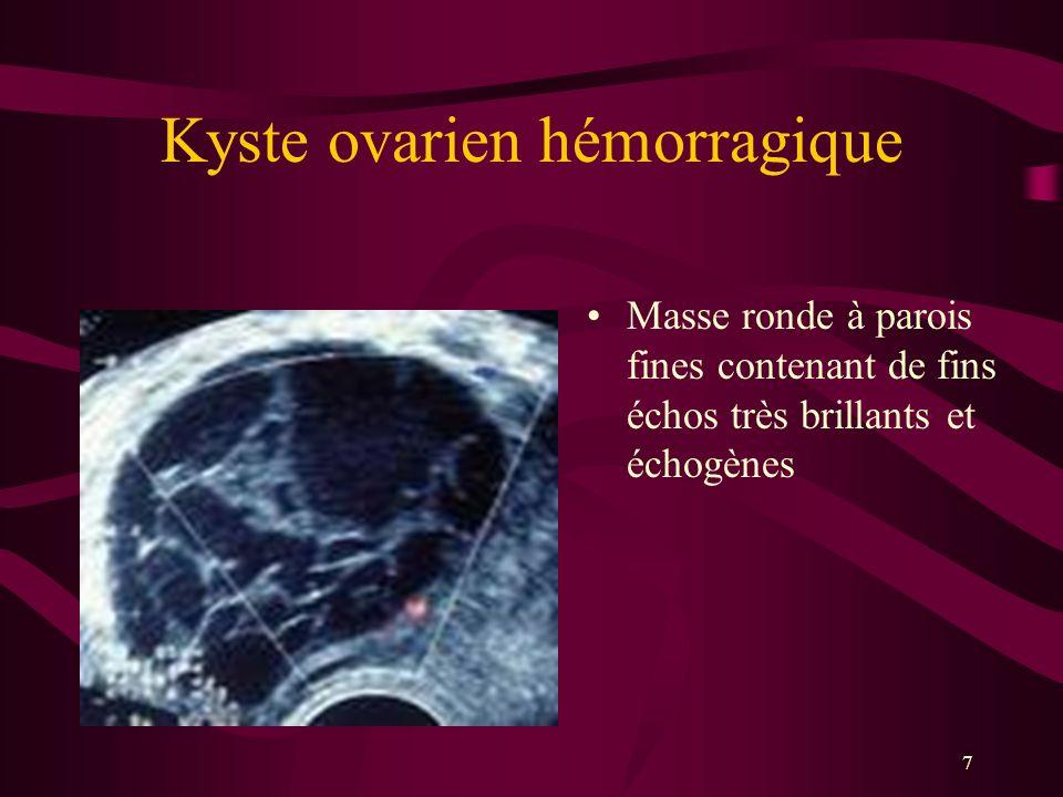 Kyste ovarien hémorragique