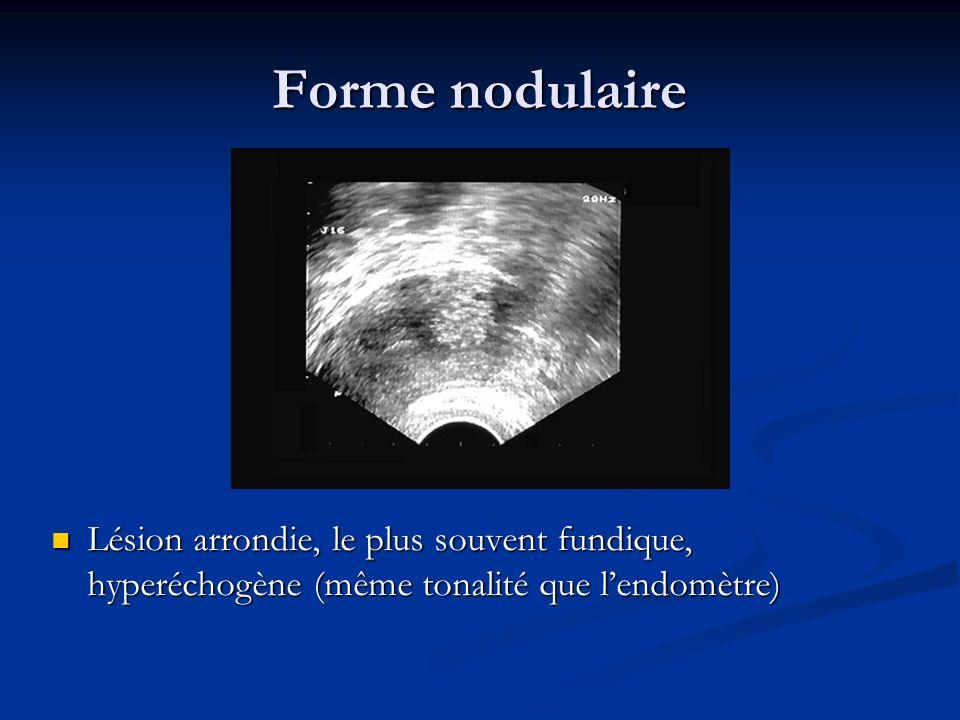 Forme nodulaireLésion arrondie, le plus souvent fundique, hyperéchogène (même tonalité que l'endomètre)