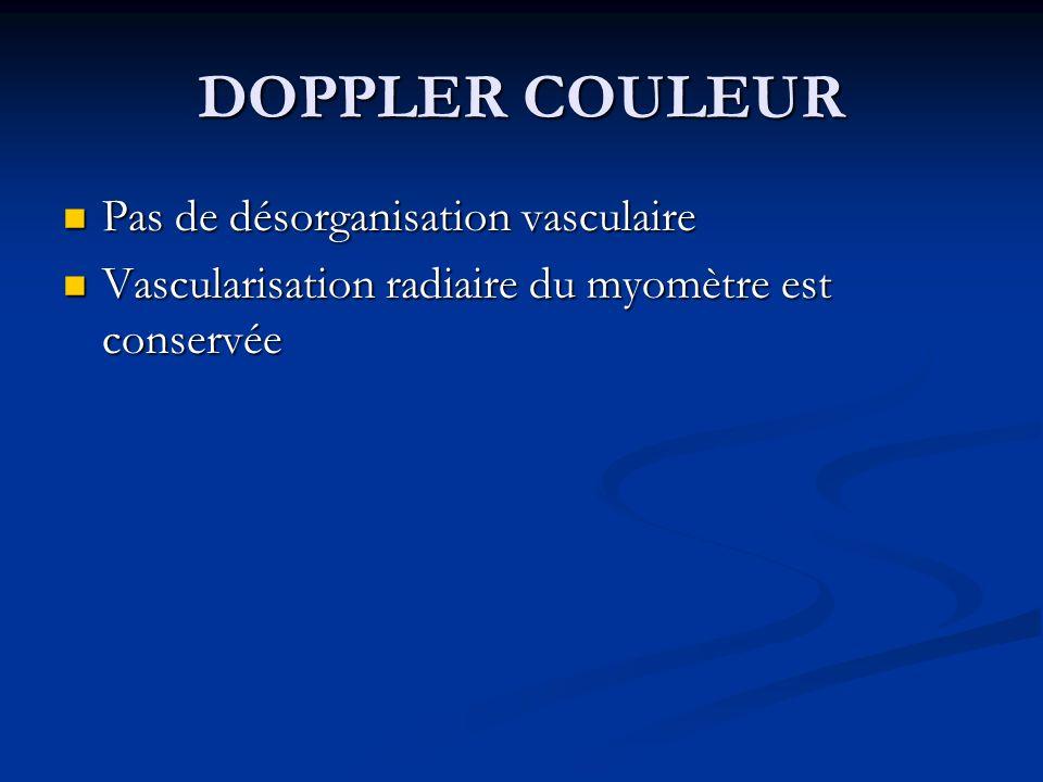 DOPPLER COULEUR Pas de désorganisation vasculaire
