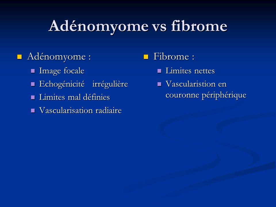 Adénomyome vs fibrome Adénomyome : Fibrome : Image focale