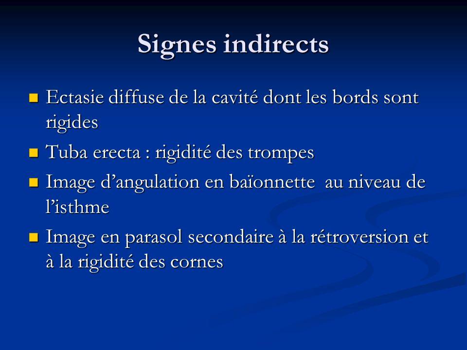 Signes indirectsEctasie diffuse de la cavité dont les bords sont rigides. Tuba erecta : rigidité des trompes.