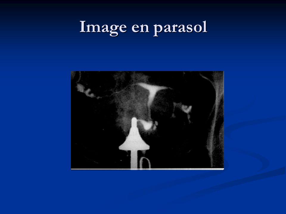 Image en parasol
